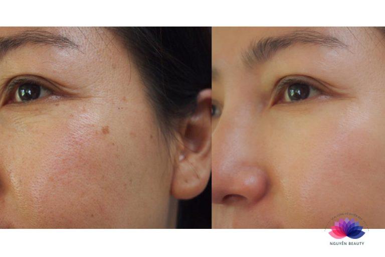 Phi kim, vi kim tế bào gốc hiệu quả tại Spa Biên Hò